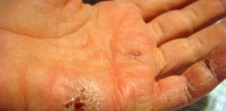 Eczema is back